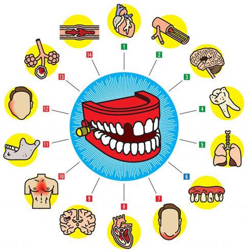 Что наши зубы говорят нам о нашем здоровье