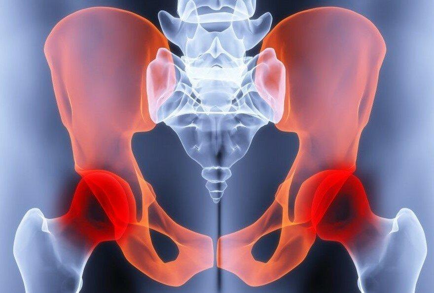 Безопасное упражнение при коксартрозе