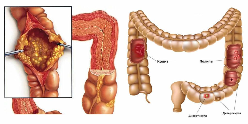 Заболевания толстой кишки: как их предотвратить