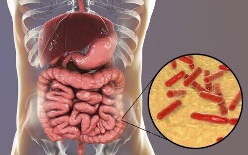 Дисбактериоз: каковы симптомы