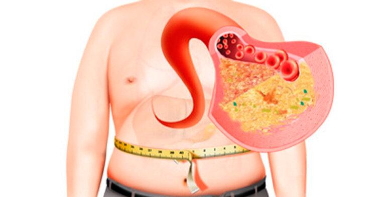 10 признаков того, что у тебя может быть жировой гепатоз