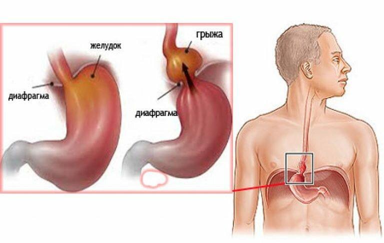 Лечение грыжи пищеводного отверстия диафрагмы