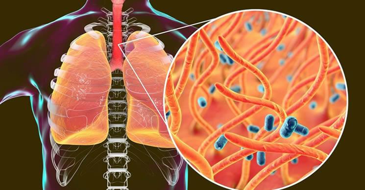 5 продуктов, которые ослабляют иммунную систему