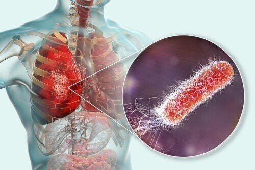 Бактерии в легких: причины, симптомы и лечение