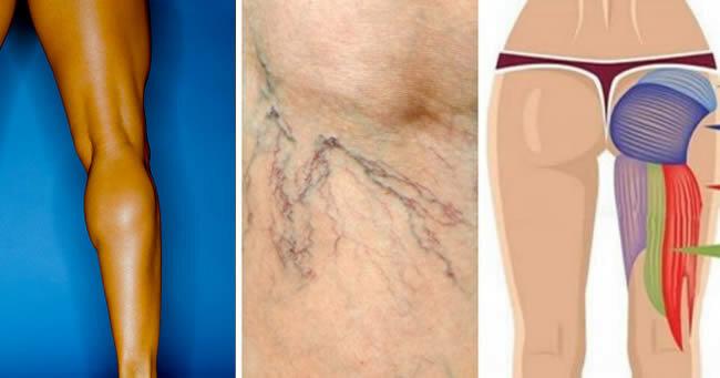 7 целевых упражнений для устранения варикозного расширения вен и тонизирования ног