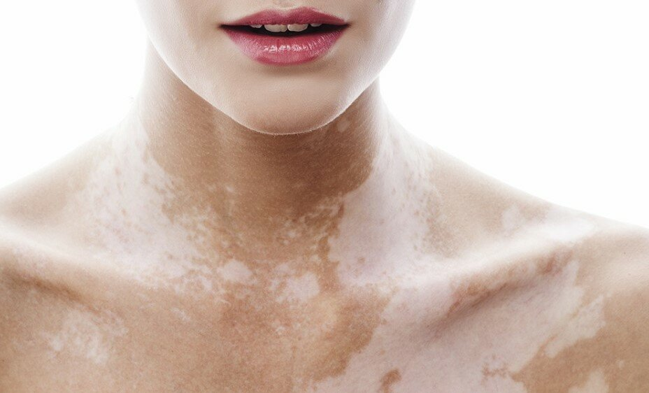 Причина появления белых пятен на коже именуемые – витилиго